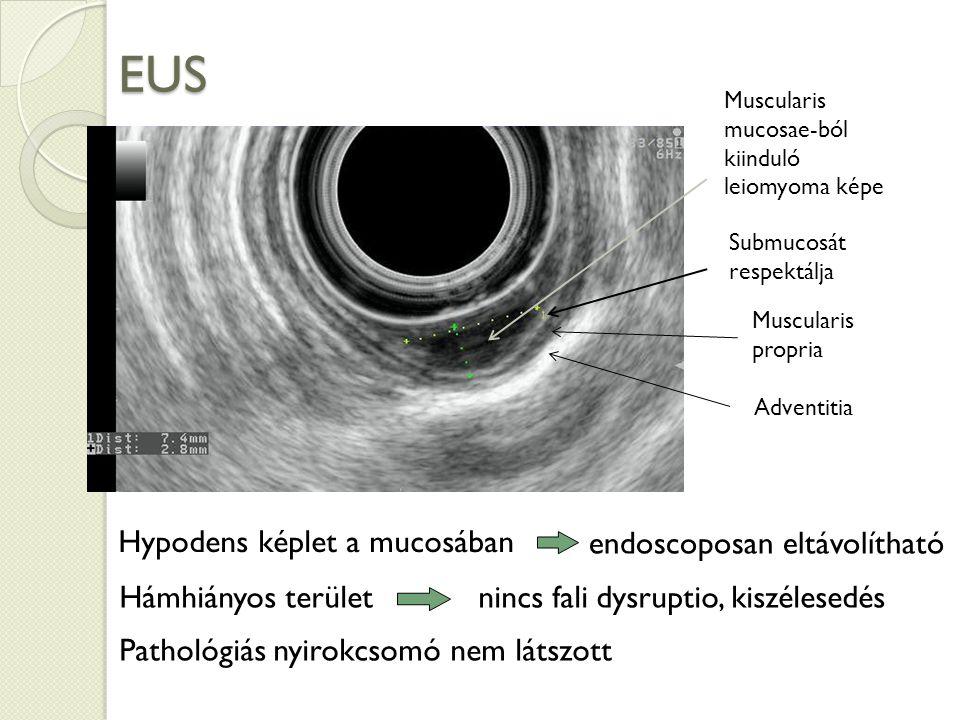 EUS Hypodens képlet a mucosában endoscoposan eltávolítható