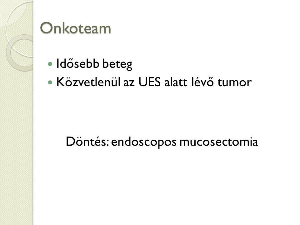 Onkoteam Idősebb beteg Közvetlenül az UES alatt lévő tumor