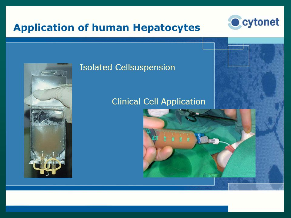 Application of human Hepatocytes