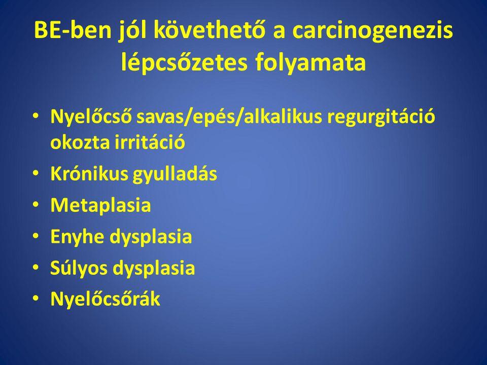 BE-ben jól követhető a carcinogenezis lépcsőzetes folyamata