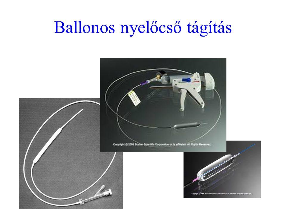 Ballonos nyelőcső tágítás