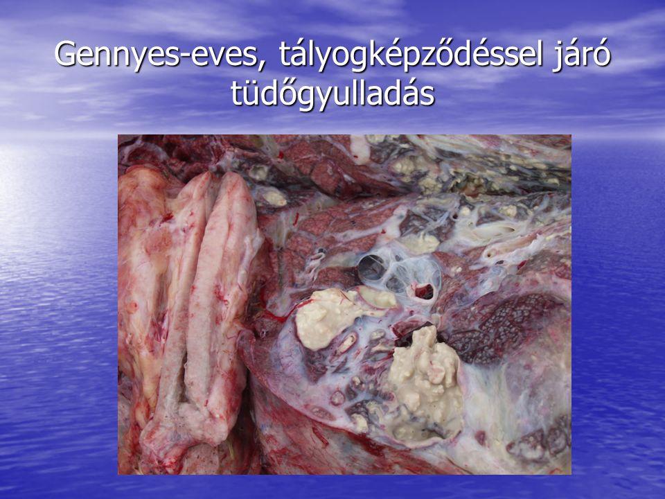 Gennyes-eves, tályogképződéssel járó tüdőgyulladás