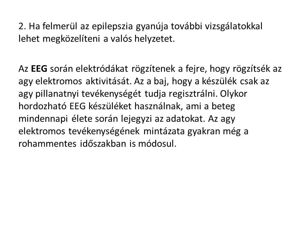 2. Ha felmerül az epilepszia gyanúja további vizsgálatokkal lehet megközelíteni a valós helyzetet.