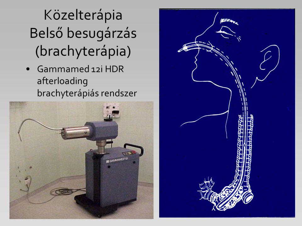 Közelterápia Belső besugárzás (brachyterápia)
