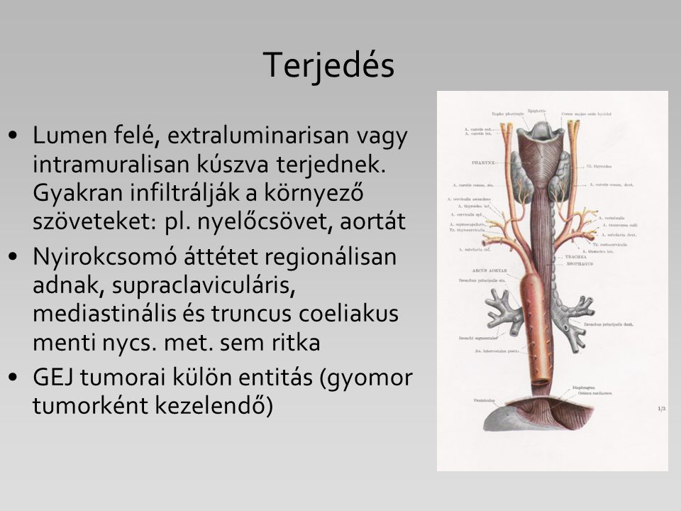 Terjedés Lumen felé, extraluminarisan vagy intramuralisan kúszva terjednek. Gyakran infiltrálják a környező szöveteket: pl. nyelőcsövet, aortát.