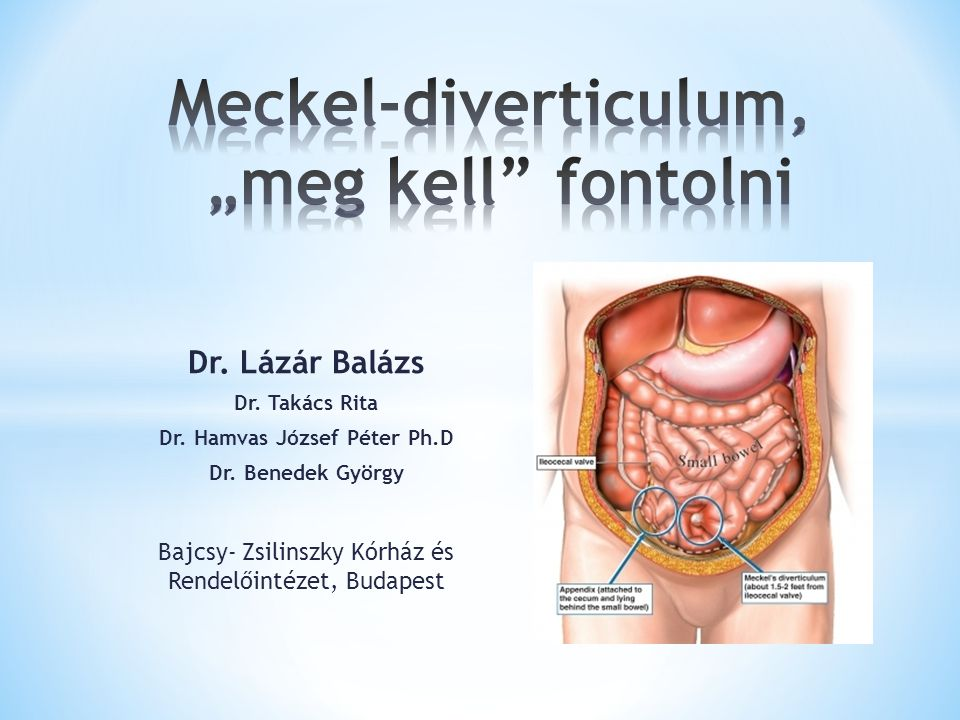 "Meckel-diverticulum, ""meg kell fontolni"
