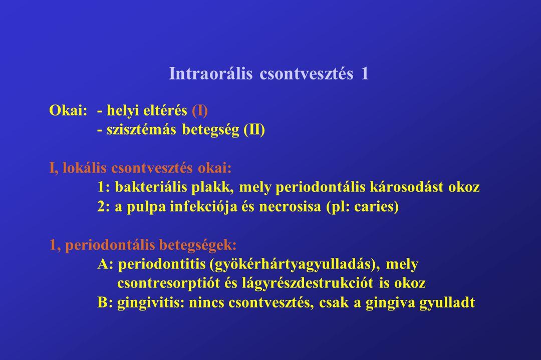 Intraorális csontvesztés 1 Okai:. - helyi eltérés (I)