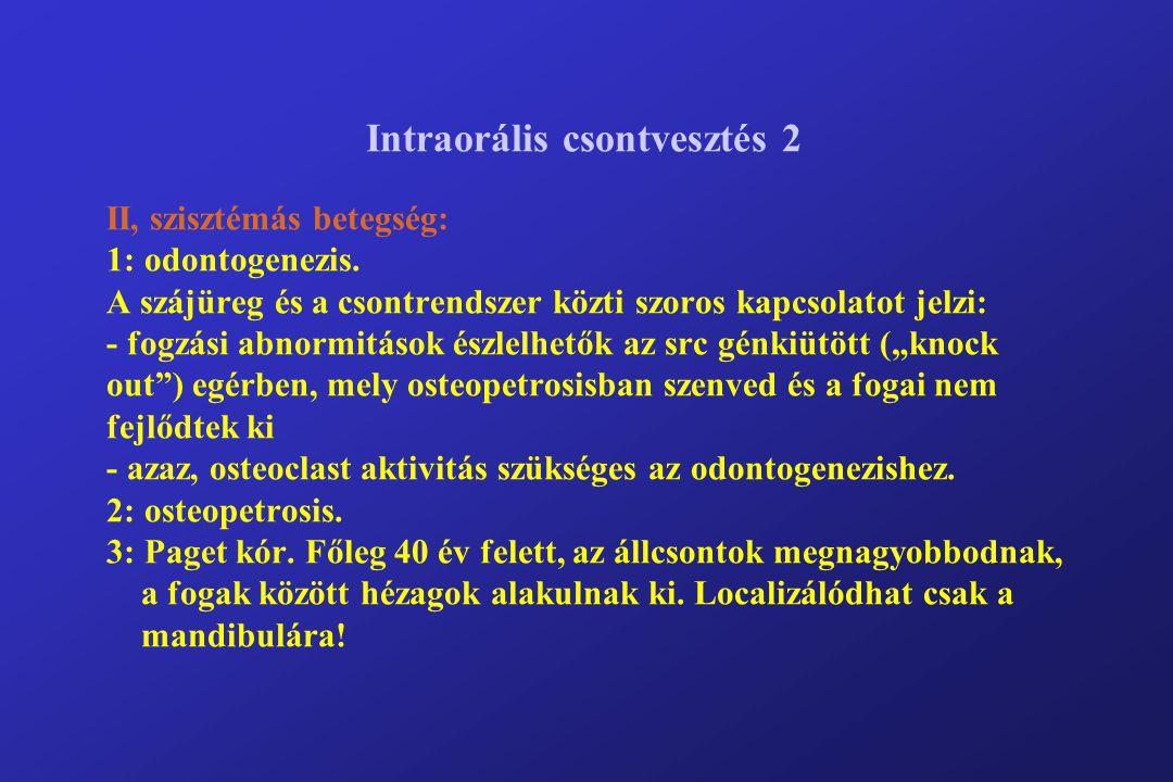 Intraorális csontvesztés 2 II, szisztémás betegség: 1: odontogenezis