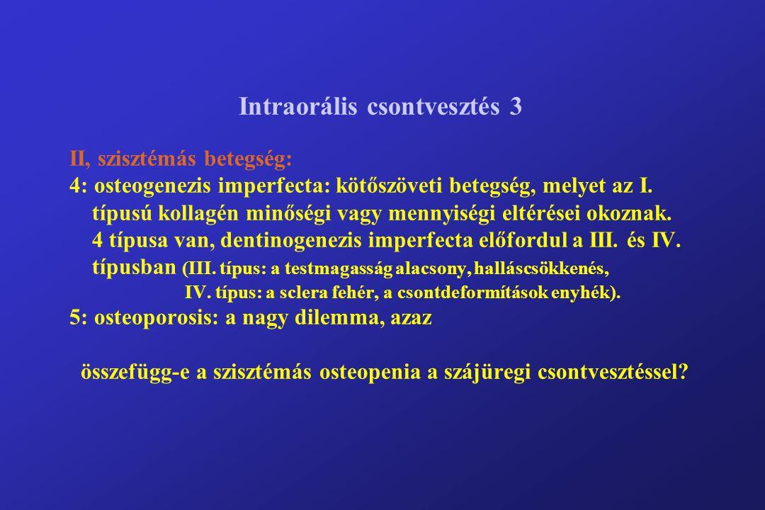 Intraorális csontvesztés 3 II, szisztémás betegség: 4: osteogenezis imperfecta: kötőszöveti betegség, melyet az I.