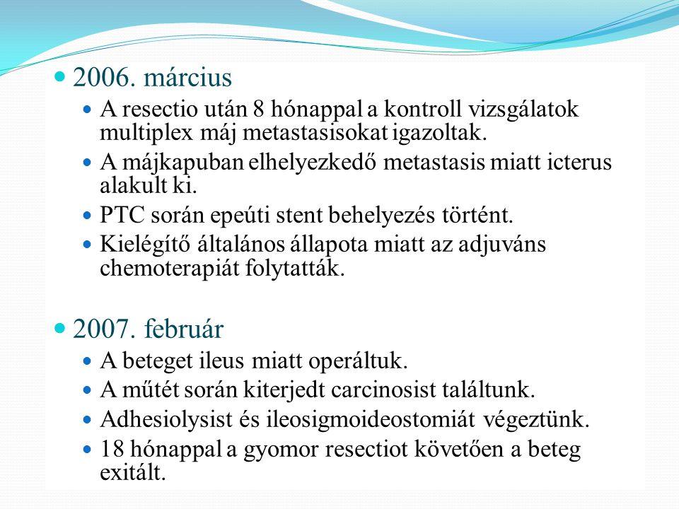 2006. március A resectio után 8 hónappal a kontroll vizsgálatok multiplex máj metastasisokat igazoltak.