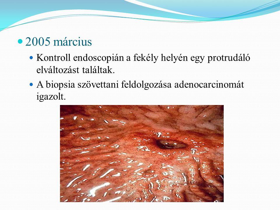 2005 március Kontroll endoscopián a fekély helyén egy protrudáló elváltozást találtak.