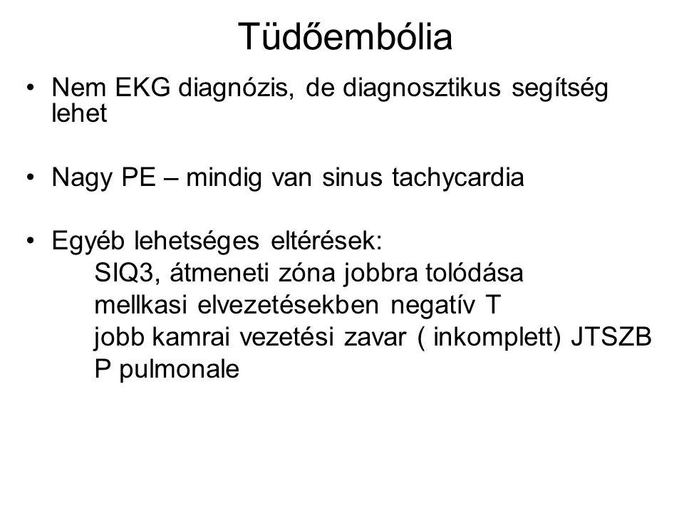 Tüdőembólia Nem EKG diagnózis, de diagnosztikus segítség lehet