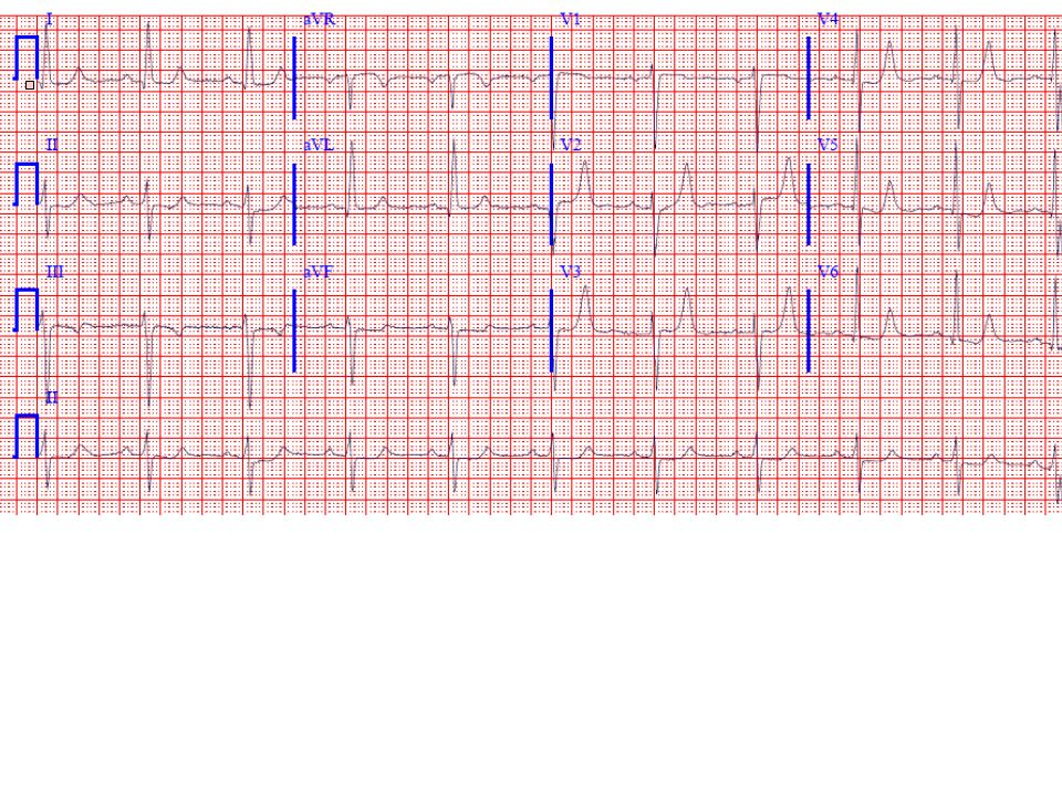 ECG shows sinus rhythm with left ventricular hypertrophy (LVH), left atrial abnormality and tall peaked T waves best seen in the precordial leads (with non-specific infero-lateral ST depressions).
