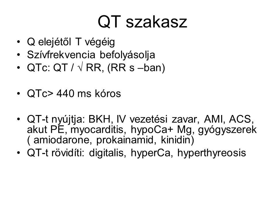 QT szakasz Q elejétől T végéig Szívfrekvencia befolyásolja