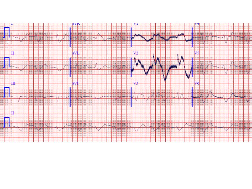 b) The ECG findings are diagnostic of severe hyperkalemia