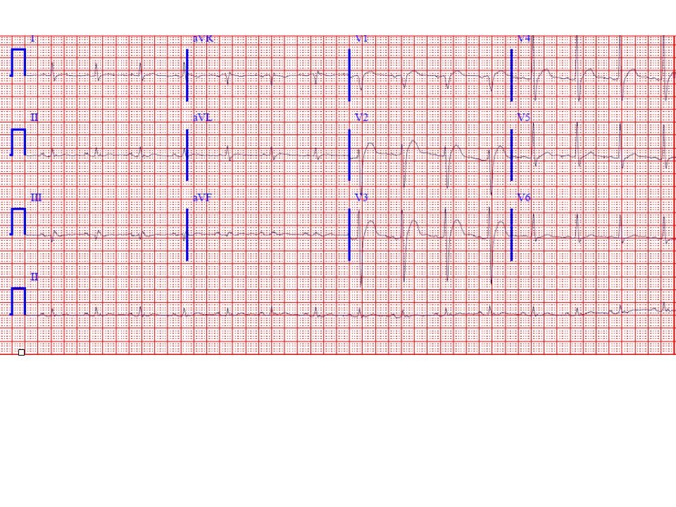 The ECG shows sinus rhythm with the following abnormalities a very short ST segment with a consequently short QT interval (about 300 msec here).