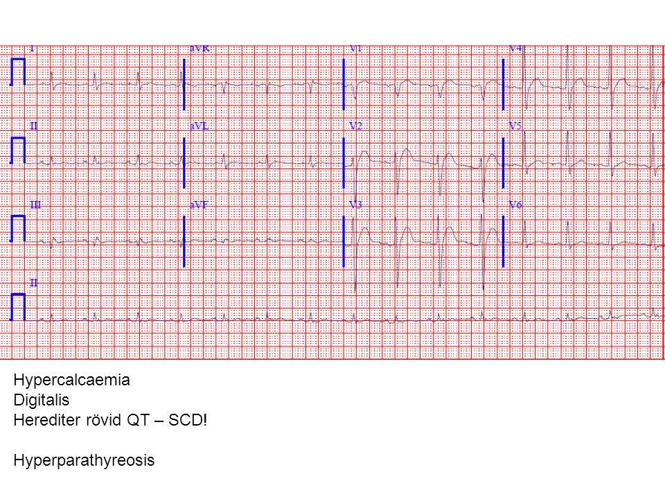 Herediter rövid QT – SCD! Hyperparathyreosis