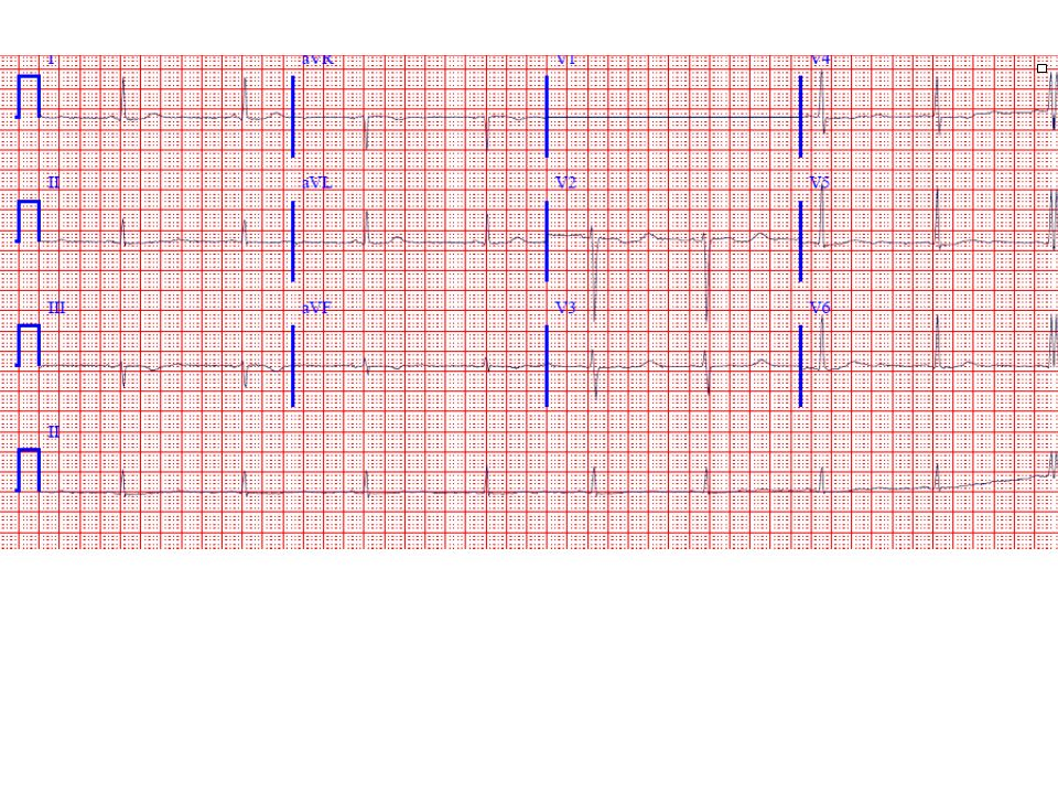 The ECG shows sinus bradycardia with diffuse T wave flattening or inversions, and markedly prominent U waves.