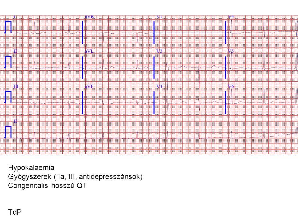 Gyógyszerek ( Ia, III, antidepresszánsok) Congenitalis hosszú QT