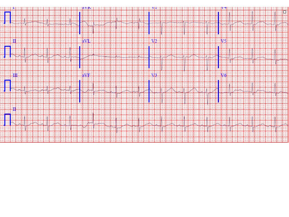30-yr-old man, not on medication. What waveform is prominent