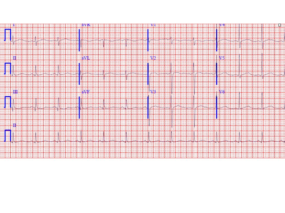 51-yr-old male; what is the key ECG finding and it s differential diagnosis * * * Difficulty ratingAnswer:The most notable finding here is a markedly prolonged QT(U) interval, best seen in the lateral precordial leads.