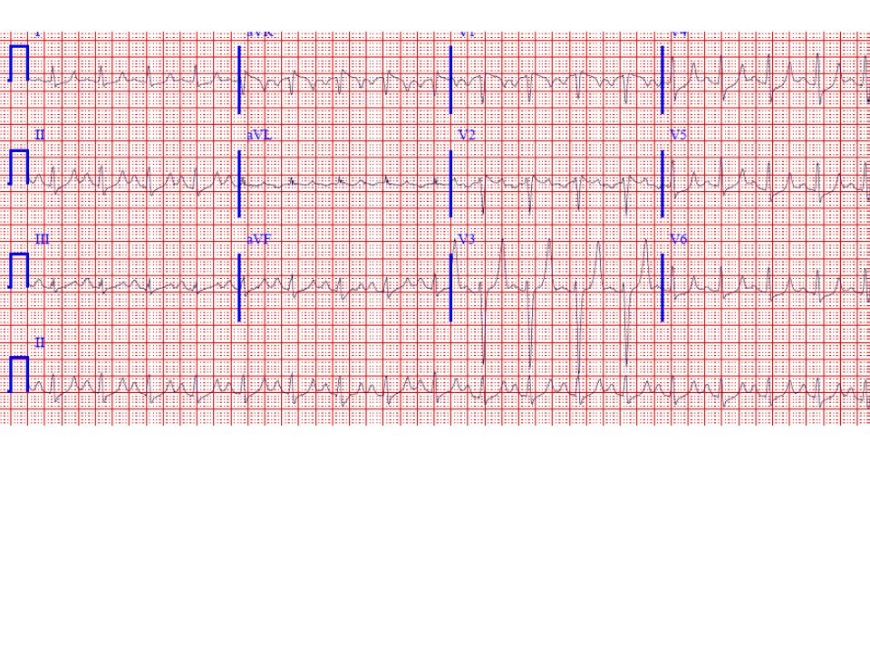 There is classic evidence of hyperkalemia with tall, narrow T waves, most evident in leads V3-V4, along with some QRS prolongation.
