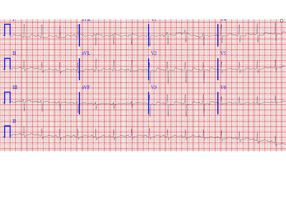31-year-old woman with ECG simulating ischemia