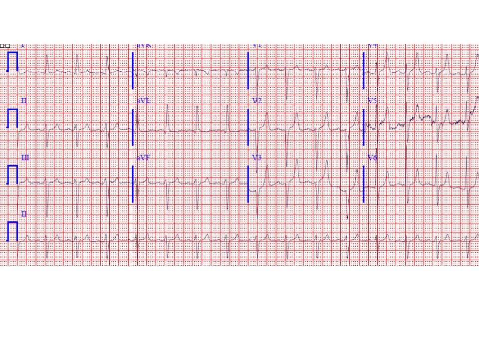 Peaked ( tented ) T waves are seen in concert with left ventricular hypertrophy (LVH), left anterior fascicular block, and very slow R-wave progression V1-V3, the latter finding raising the possibility of prior anteroseptal myocardial infarction (MI).