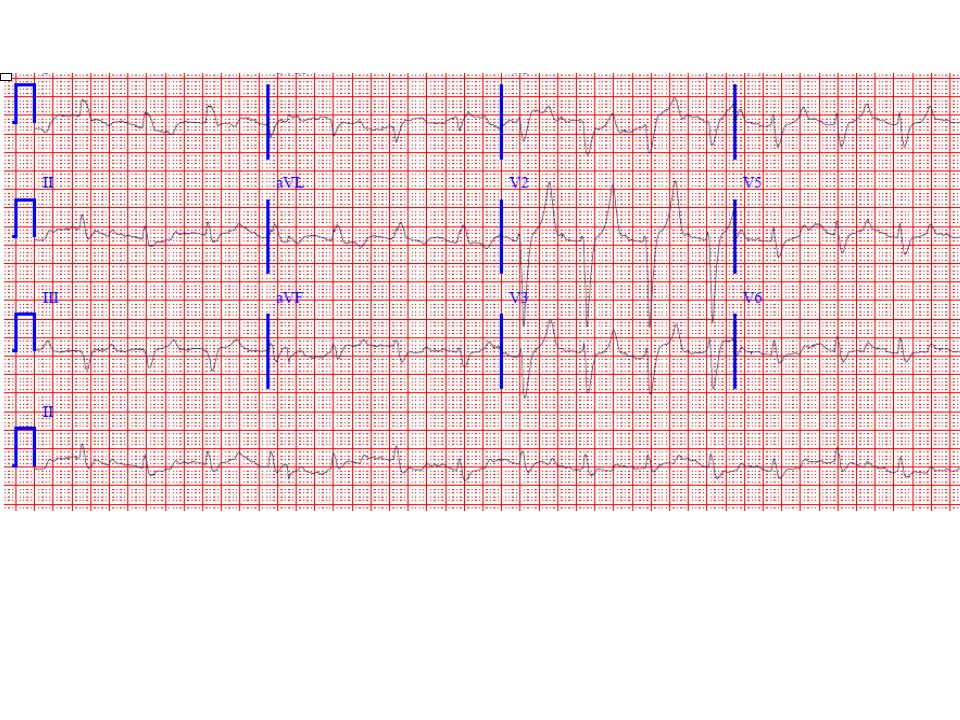 a) The ECG is very suggestive of severe hyperkalemia with the combination of symmetrically peaked T waves (V2-V4) with a wide QRS (left bundle branch block pattern here) and a long PR interval (about 0.26 sec—see lead V2). The wide QRS with severe hyperkalemia can resemble a left or right bundle branch block pattern or often shows more non-specific type of intraventricular conduction disturbance. The effects depend to some extent on any underlying conduction disturbances.