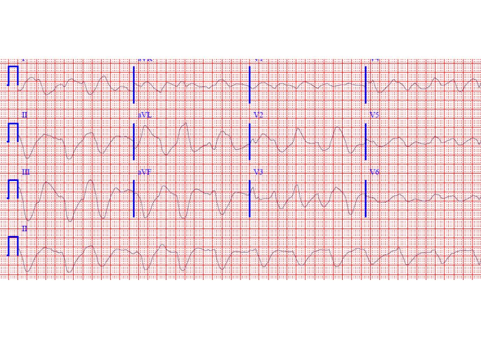 This ECG shows an extremely wide complex rhythm (QRS duration 0