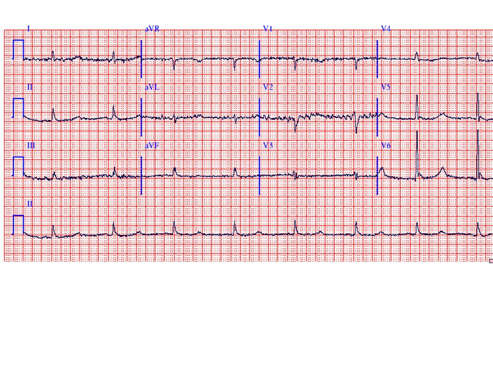 The rhythm is sinus bradycardia at a rate of about 46 bpm with prominent J (Osborn) waves in leads V4-V6 and marked QT prolongation (620 msec).