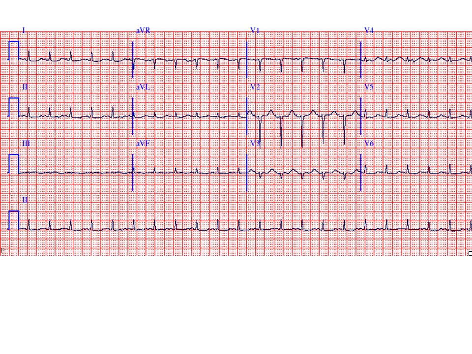 The ECG shows a number of salient findings including: sinus tachycardia, long QT/QTc (.34 sec/.46), low limb lead and lateral QRS voltages, along with non-diagnostic slow R wave progression V1-V3 and non-specific ST-T changes. The only diagnosis listed above that accounts for the major findings is acute pancreatitis. The long QT (ST segment component is stretched out) is due to hypocalcemia (Ca++ 7.2 mg/dL with serum albumin of 2.7 g/dL). Sinus tachycardia is due to neuroautonomic activation in this context and the low voltage is consistent with ascites/anasarca There is no evidence of acute MI by ECG and the echocardiogram was unremarkable.