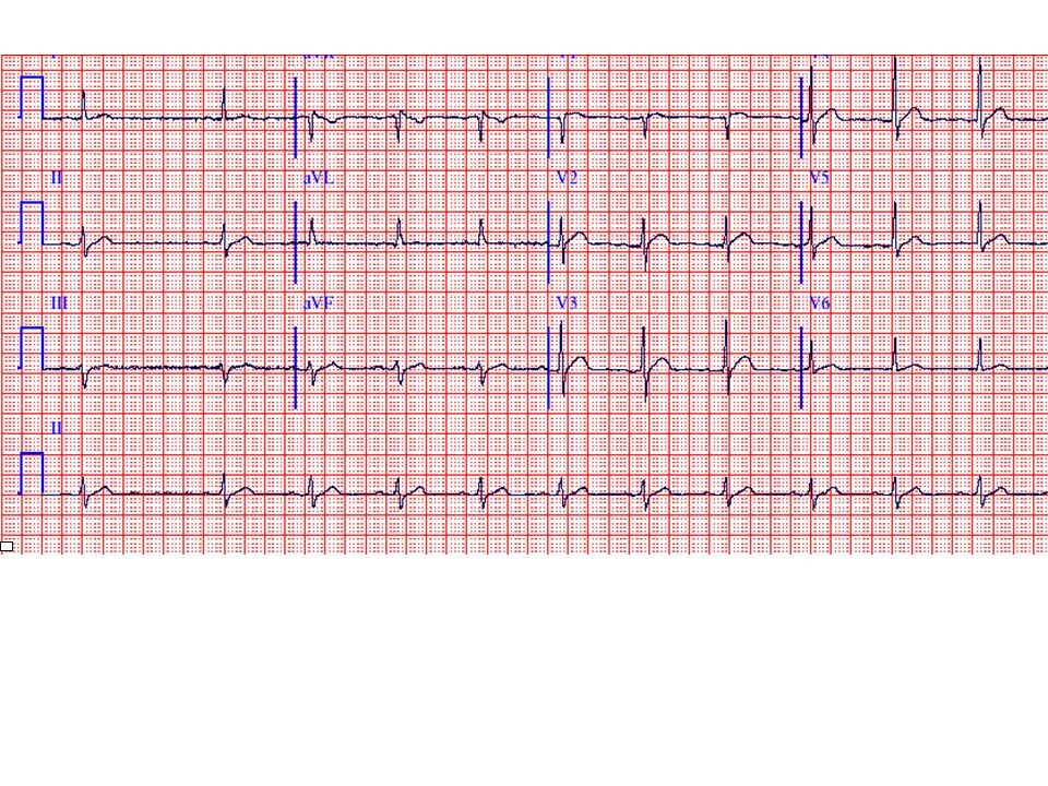 This ECG shows sinus rhythm at a rate of about 70 bpm (there is sinus arrhythmia with a short sinus pause at the beginning).