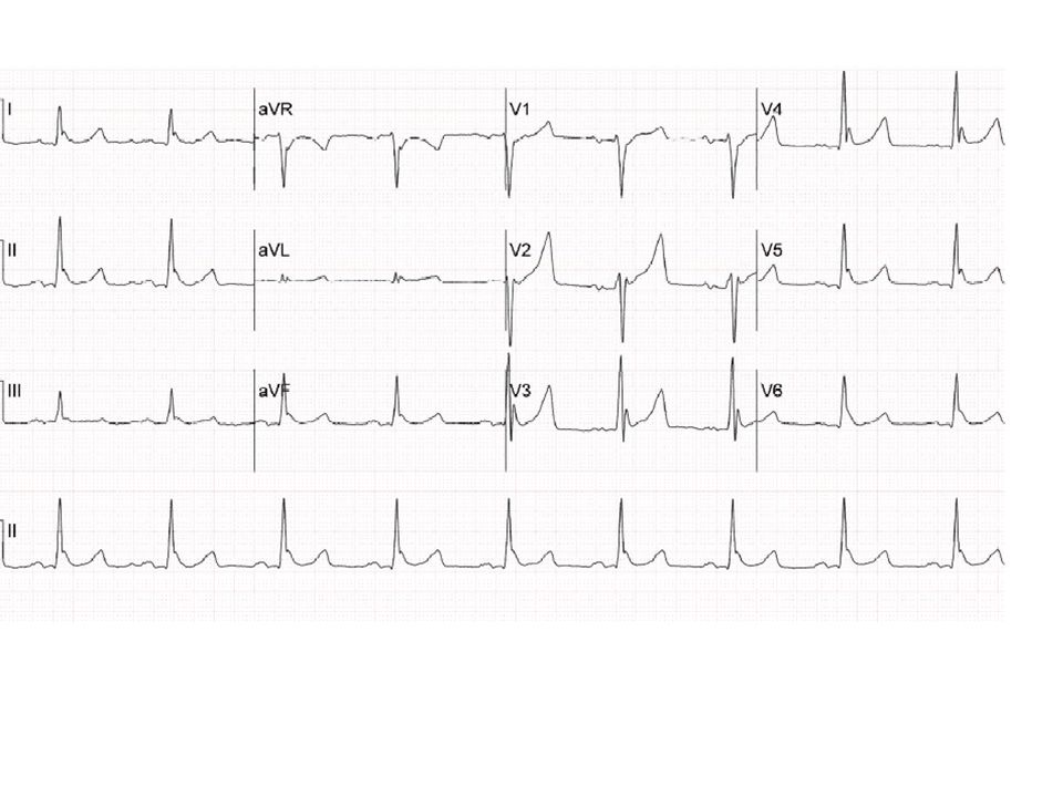 This ECG shows classic signs of systemic hypothermia with sinus bradycardia (at about 52 beats/min), prominent J (Osborn) waves and QT prolongation (540 msec).