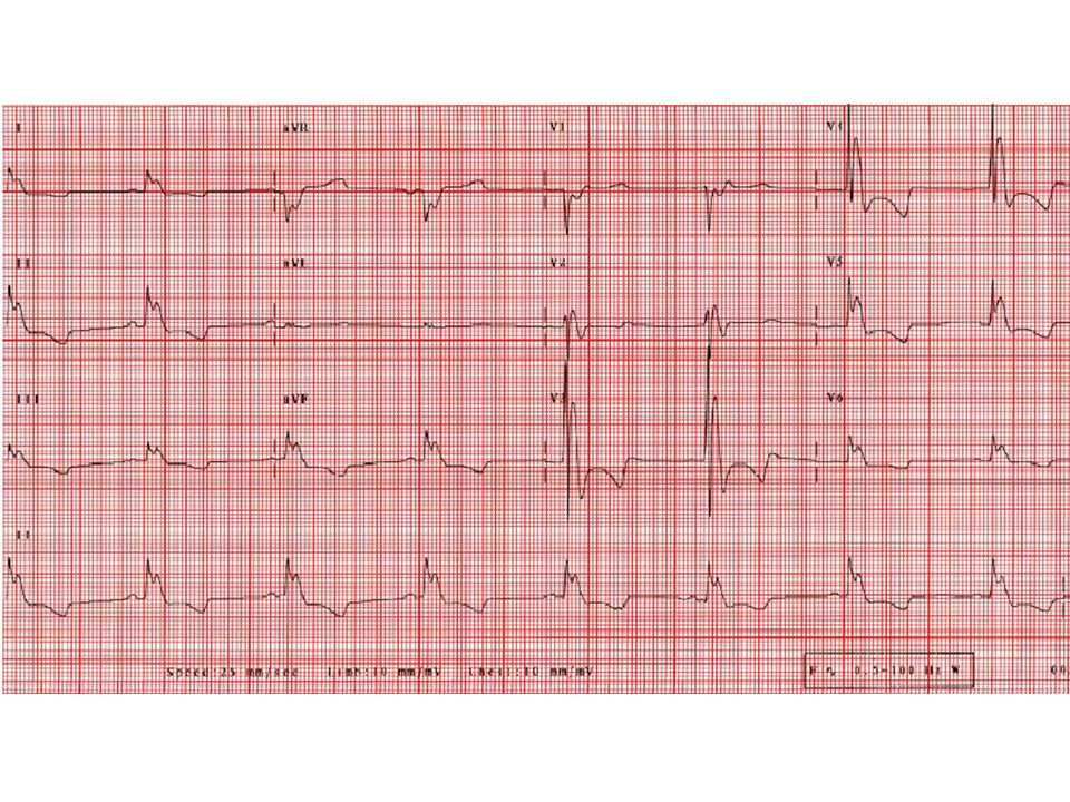 This ECG shows classic signs of systemic hypothermia with prominent sinus bradycardia (about 45 bpm) with marked J (Osborn) waves (see, e.g., leads V4 and V5, simulating a bundle branch block or ischemic pattern). There are also prominent T wave inversions and QT prolongation. The patient, with a history of polysubstance abuse, was found unresponsive, last seen the day before. His rectal temperature was 80.0 degrees F. Following rewarming, his ECG completely normalized.