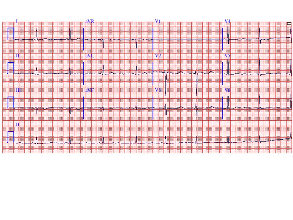 This ECG shows sinus bradycardia (52 bpm) with T wave flattening and very prominent U waves, best seen in leads V2-V3, most consistent with severe hypokalemia and/or certain types of drug effect/toxicity. The patient had marked hypokalemia. A low TSH with an elevated T4 level would be consistent with severe hyperthyroidism, which is associated with resting sinus tachycardia (or atrial fibrillation). Digoxin toxicity may be associated with sinus bradycardia but the QT interval would be relatively short. Hyponatremia and hyperchloremia are not associated with specific ECG findings.