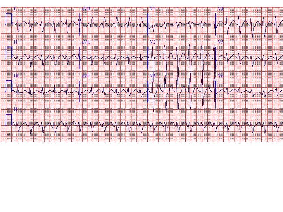 ad Sinus tachy, intraventricularis vezetési zavar, hosszú QT – QTc:670 ms – antidepresszáns túladagolás.