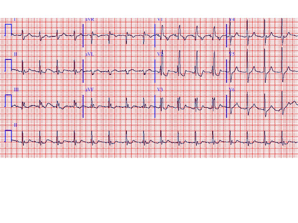 The ECG shows atrial tachycardia (atrial rate 200/min) with 2:1 AV block (ventricular rate 100/min). Look closely at V1 and you will see two distinct P waves before each QRS (one superimposed on the T wave of the preceding beat). A typical right bundle branch block (RBBB) pattern is also present with rSR' complexes in leads VI-V3. Non-specific ST segment depressions are present. Atrial tachycardia with block should always prompt a search for digitalis toxicity, which may induce concomitant increased atrial automaticity and AV conduction impairment. One specific mechanism for the increased ectopic atrial activity may be atrial myocardial cell calcium loading due to digitalis, leading, in turn, to triggered activity from delayed afterdepolarizations. Digitalis also increases vagal tone so that the atrial tachyarrhythmia is typically combined with Type 1 AV block in this setting. Hypokalemia may play a contributory role.