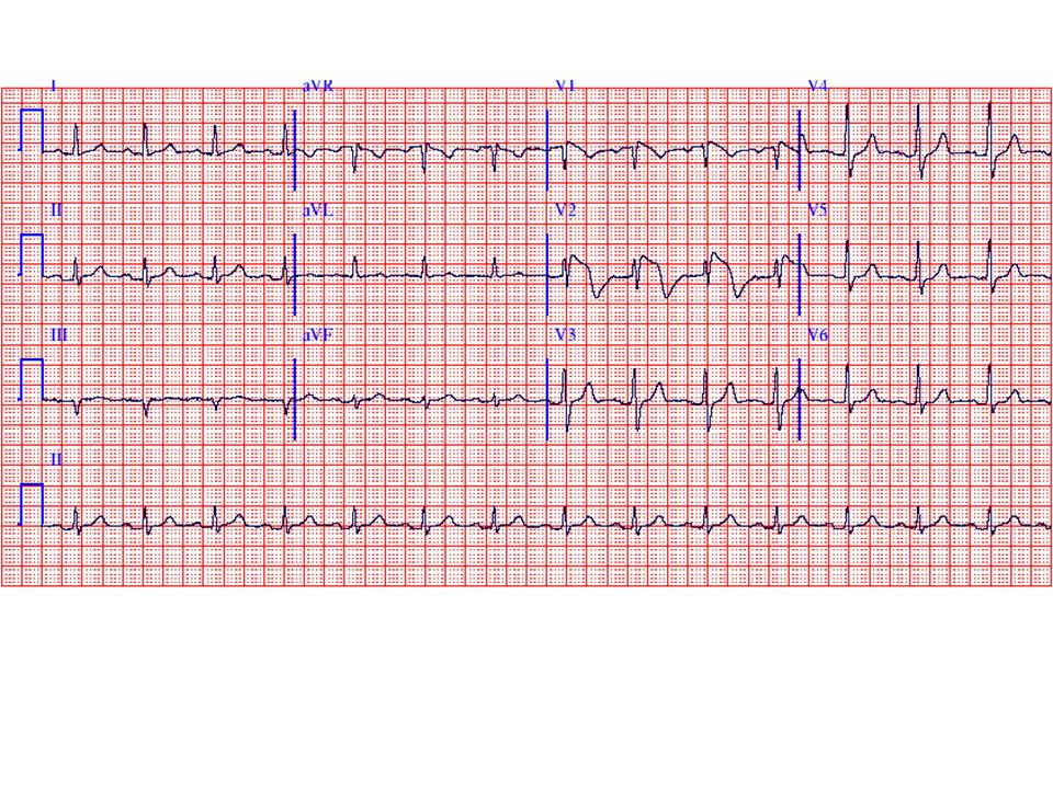 The ECG shows sinus rhythm with unusual ST segment elevations/T wave inversions ( coved pattern) in V1 and V2.