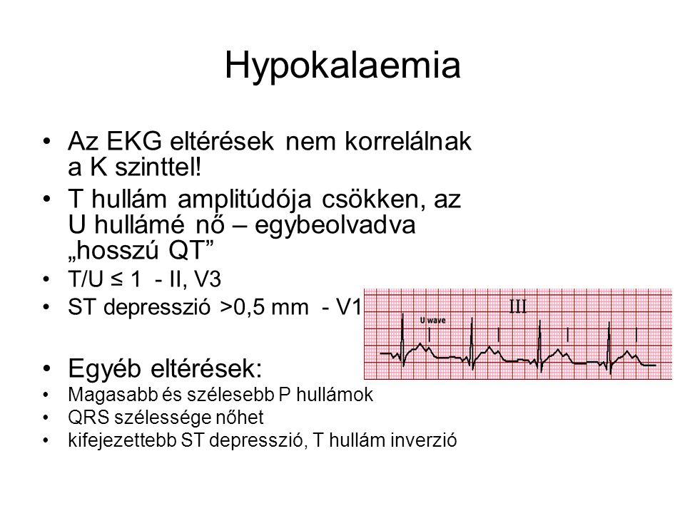 Hypokalaemia Az EKG eltérések nem korrelálnak a K szinttel!
