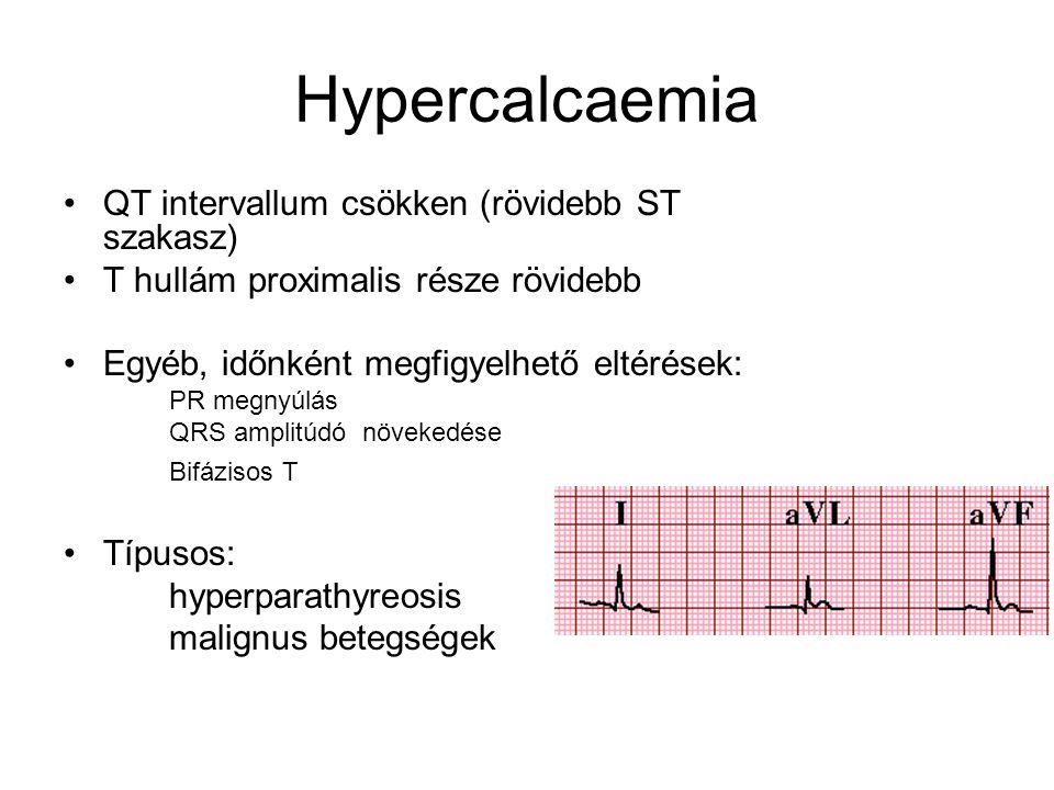 Hypercalcaemia QT intervallum csökken (rövidebb ST szakasz)