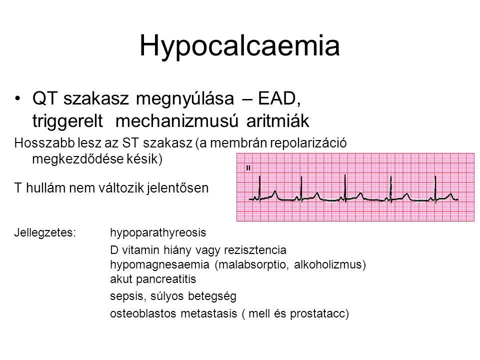 Hypocalcaemia QT szakasz megnyúlása – EAD, triggerelt mechanizmusú aritmiák.
