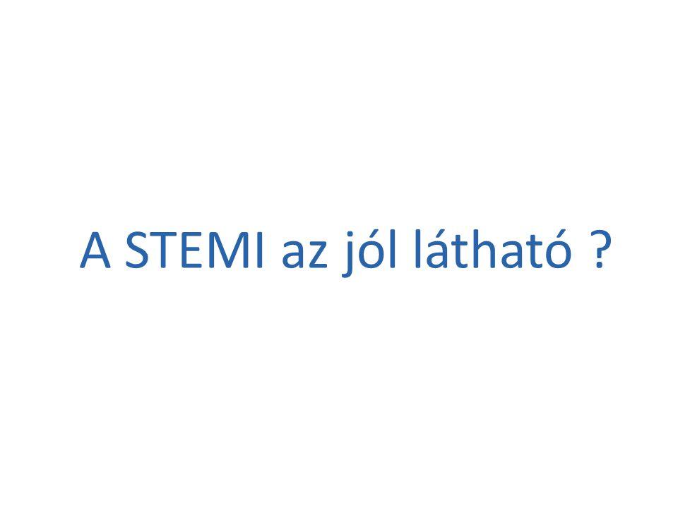 A STEMI az jól látható