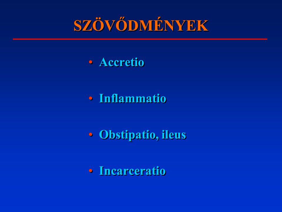SZÖVŐDMÉNYEK Accretio Inflammatio Obstipatio, ileus Incarceratio