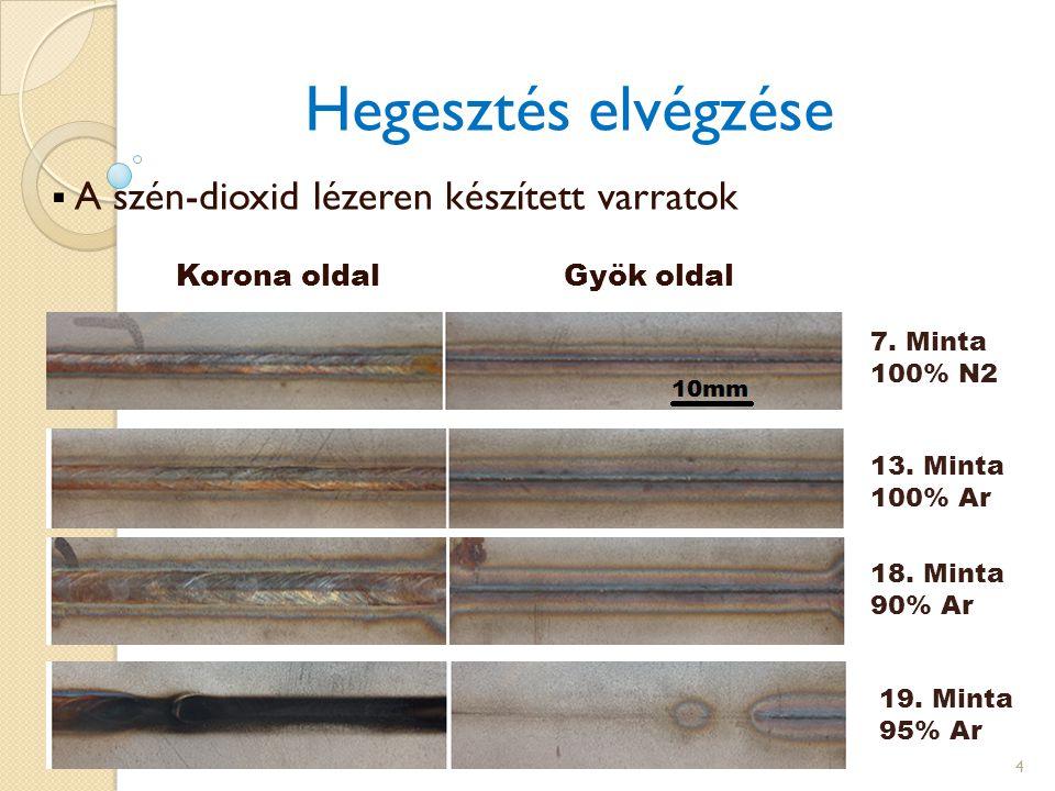 A szén-dioxid lézeren készített varratok Korona oldal Gyök oldal