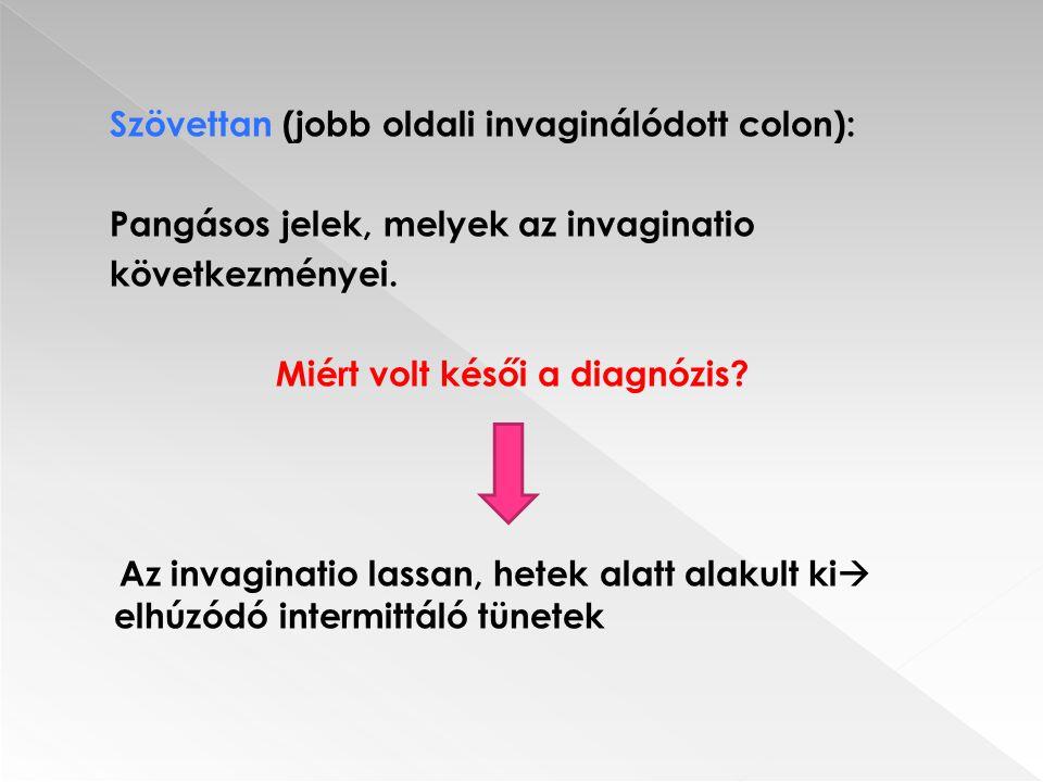 Szövettan (jobb oldali invaginálódott colon): Pangásos jelek, melyek az invaginatio következményei.
