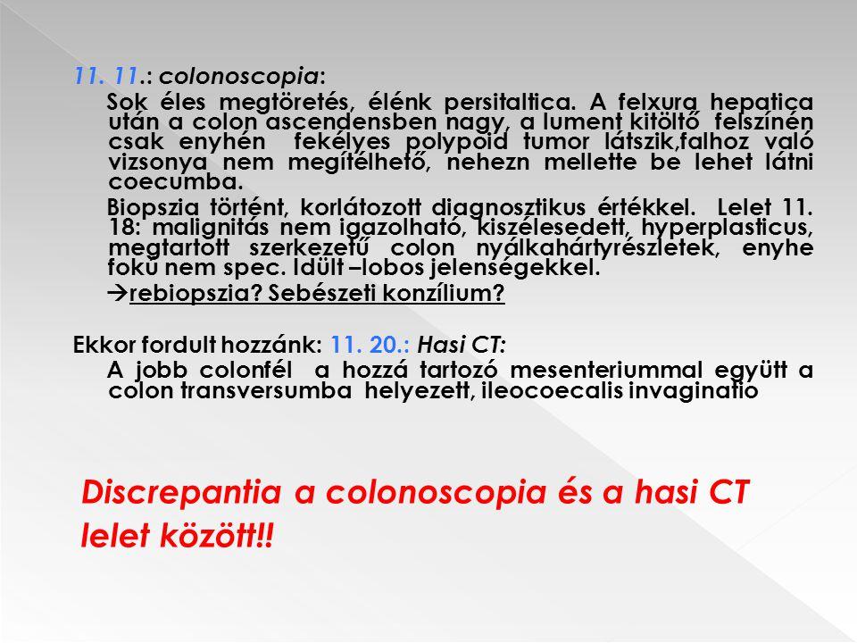 Discrepantia a colonoscopia és a hasi CT lelet között!!