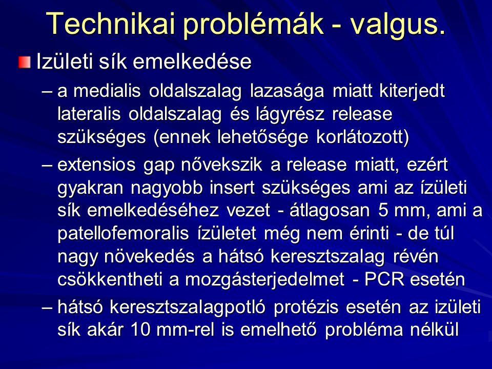 Technikai problémák - valgus.