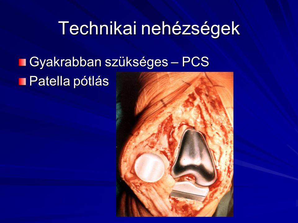 Technikai nehézségek Gyakrabban szükséges – PCS Patella pótlás
