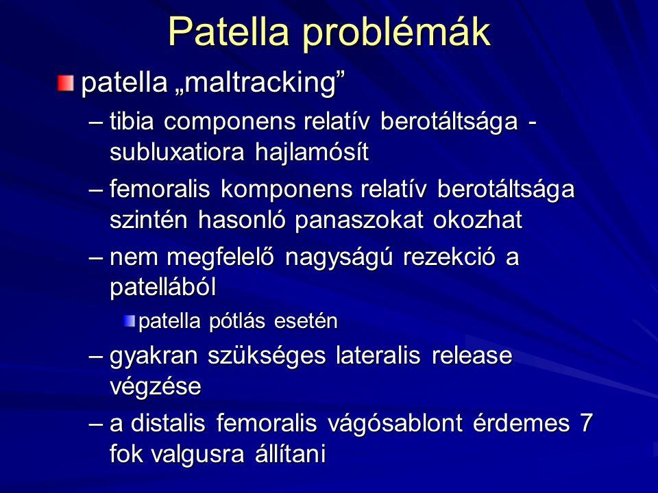 """Patella problémák patella """"maltracking"""